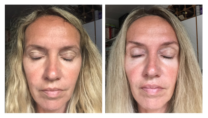 before-after2wks-mette