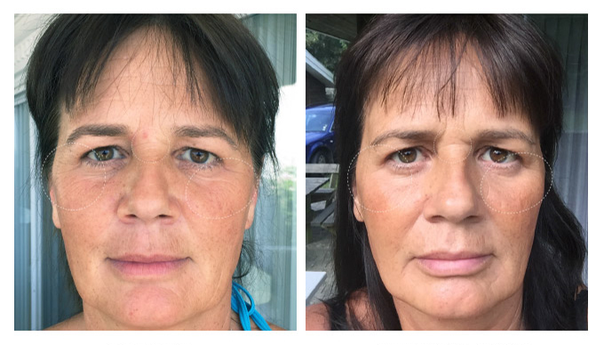 before-after3wks-susanne
