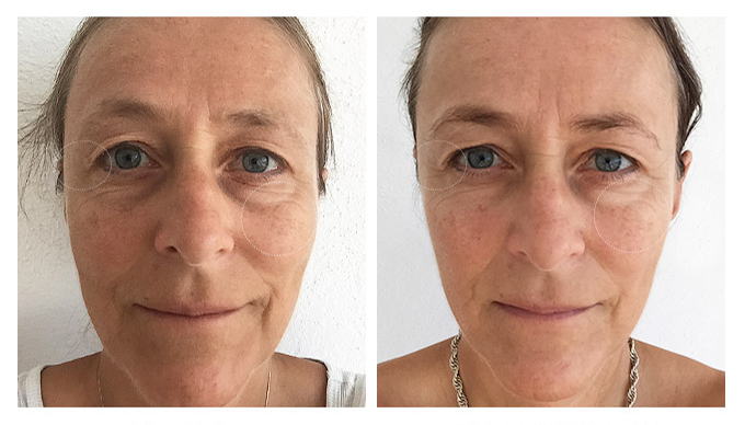 before-after6wks-pernille