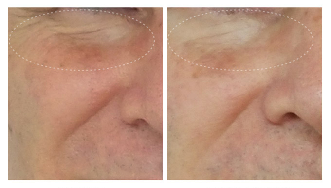 before-after4wks-frederick